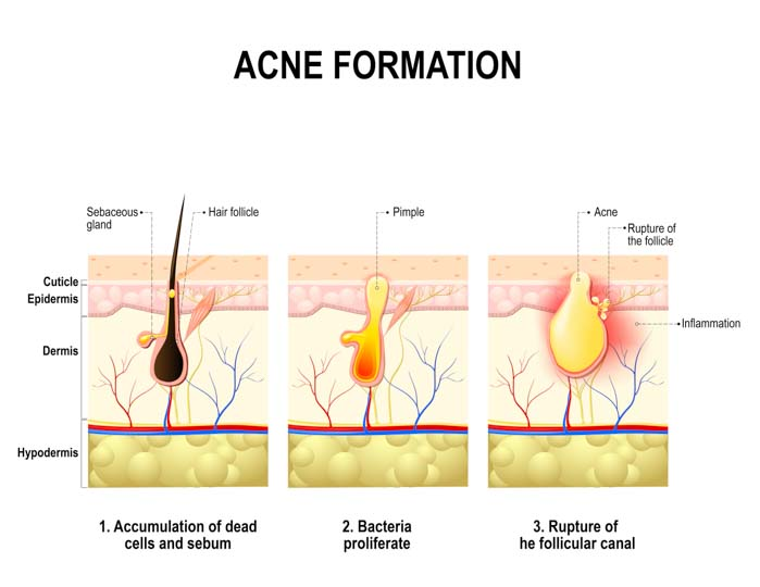 Acne Treatment | Spectrum Dermatology Scottsdale, Arizona
