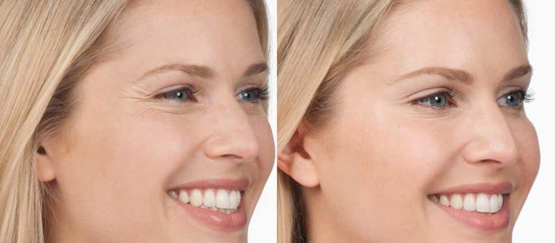 Botox Injections | Spectrum Dermatology Scottsdale, AZ