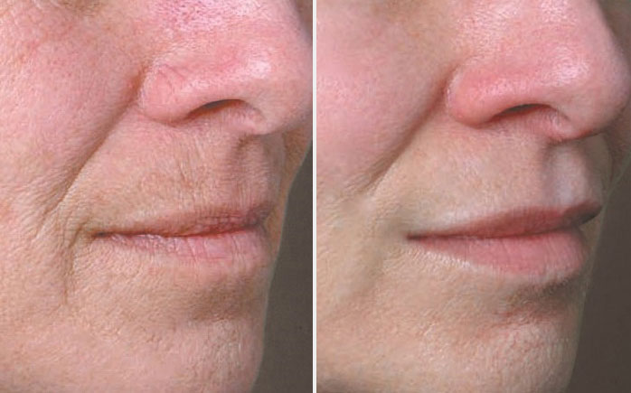 Volbella Dermal Filler | Spectrum Dermatology Scottsdale