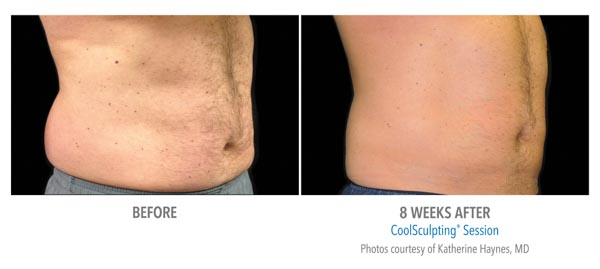 CoolSculpting Fat Reduction Before/After | Spectrum Dermatology, Scottsdale