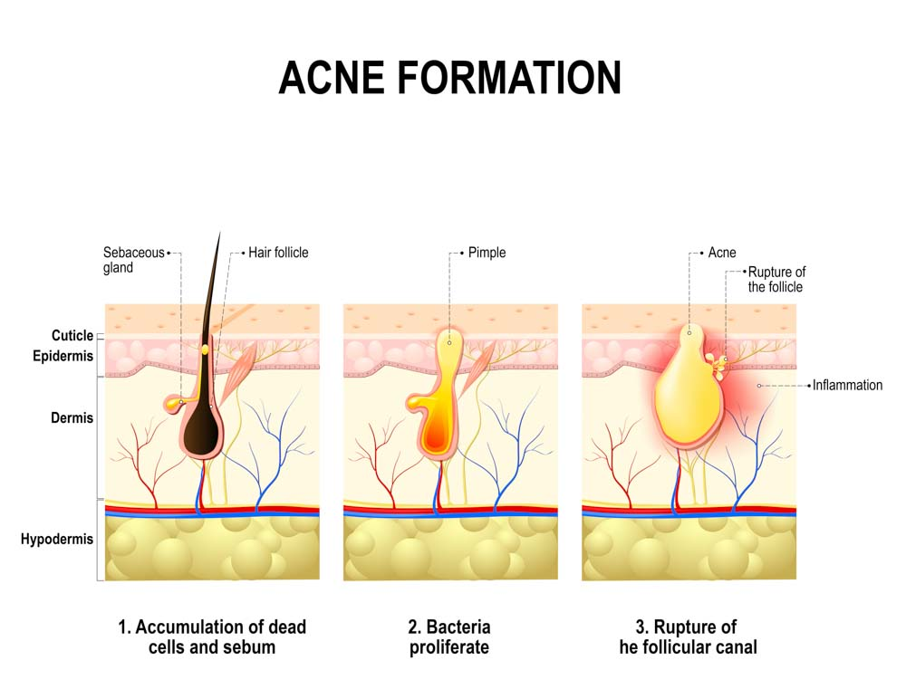Treatment For Acne Scarring | Spectrum Dermatology, Scottsdale, AZ