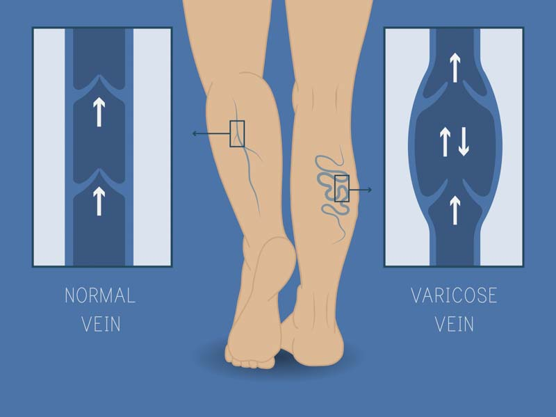 Variose Veins | Spectrum Dermatology, Scottsdale, Arizona