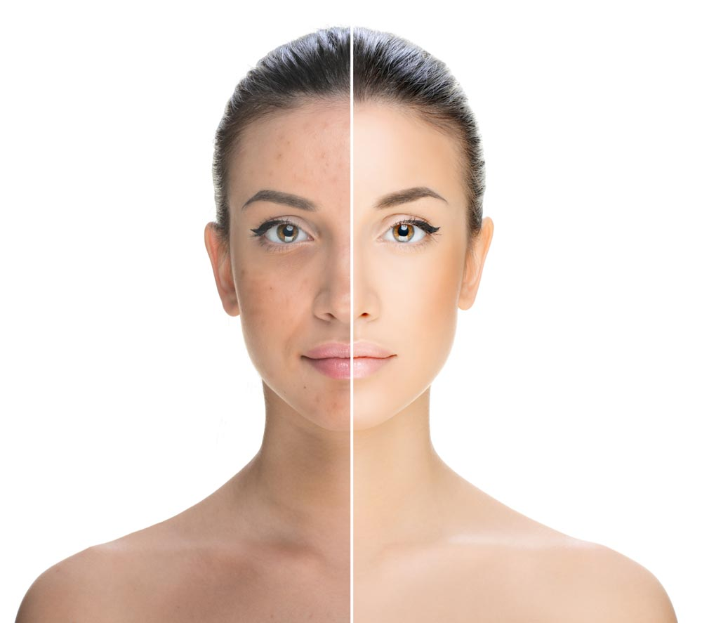 Meet ResurFX Laser Skin Resurfacing | Spectrum Dermatology, Scottsdale