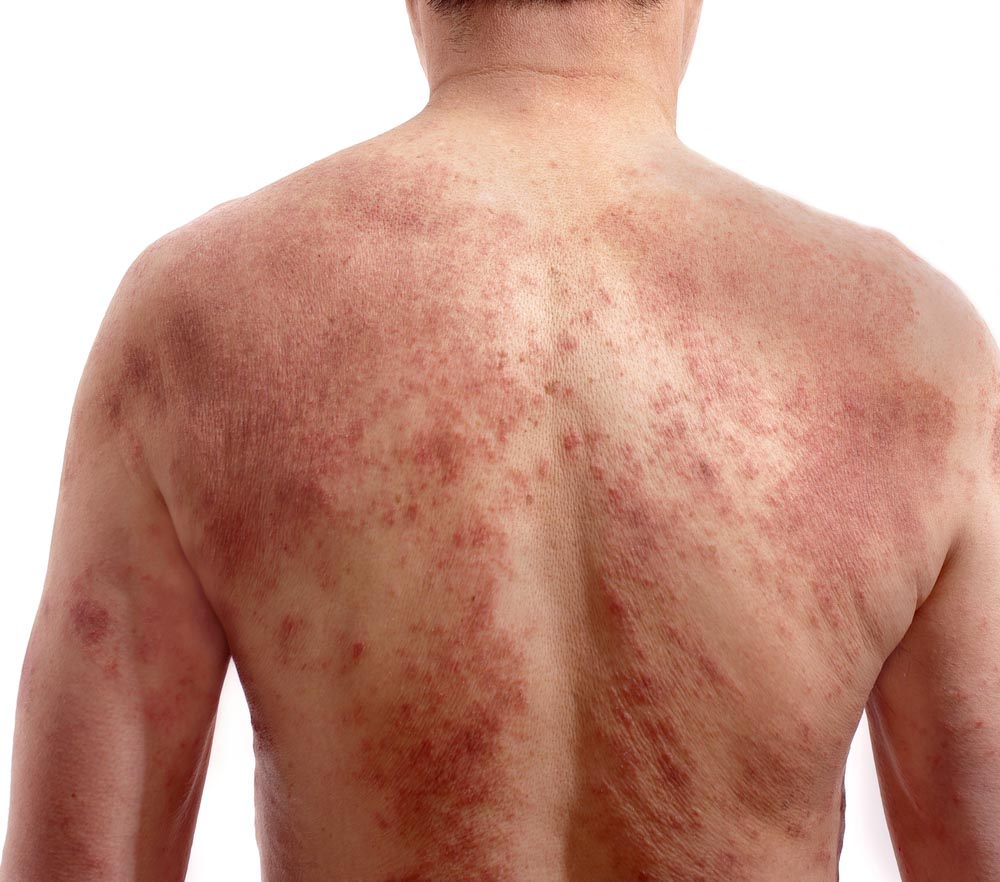 Is This Psoriasis or Eczema? | Spectrum Dermatology, Scottsdale
