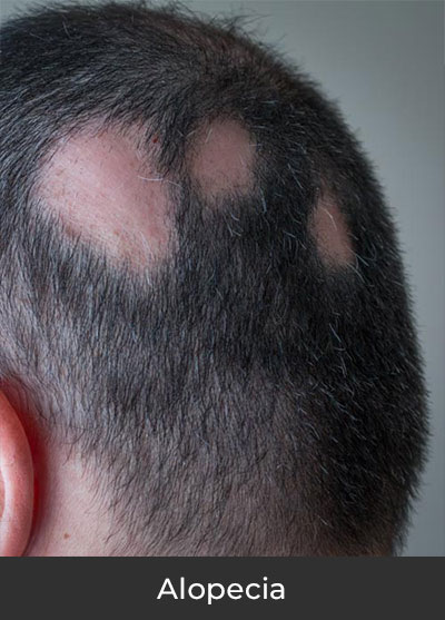 Alopecia Clinical Trials | Spectrum Dermatology