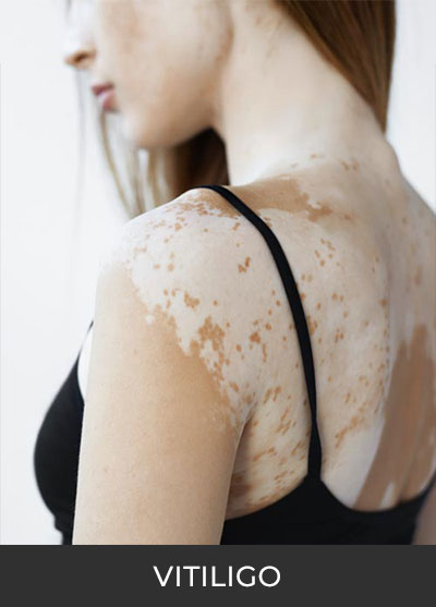 Vitiligo Clinical Trials | Spectrum Dermatology