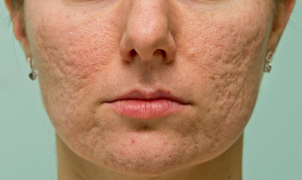 Bad Acne Habits to Stop | Spectrum Dermatology, Scottsdale