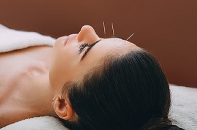 woman receiving facial acupuncture