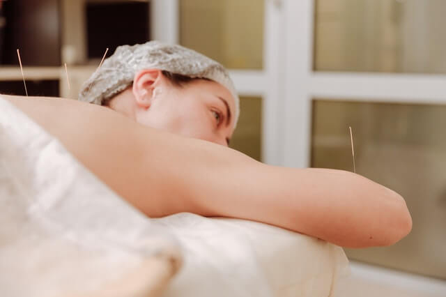 3 Acupuncture Benefits to Help You Achieve Your Goals in 2021