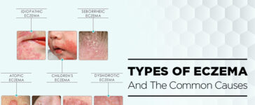 Types Of Eczema And The Common Causes Blog Featured Image