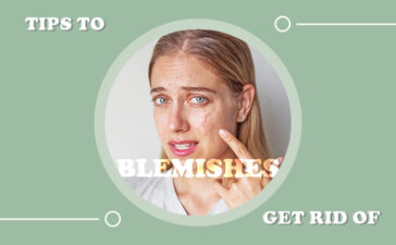 Tips For Getting Rid Of Blemishes Blog Featured Image