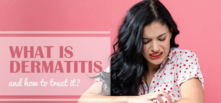 What Is Dermatitis And How To Treat It Blog Featured Image