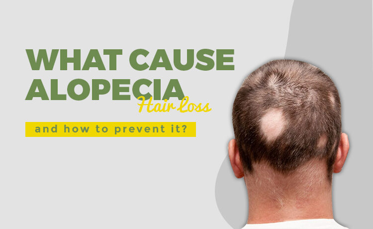 How To Prevent Alopecia Blog Featured Image