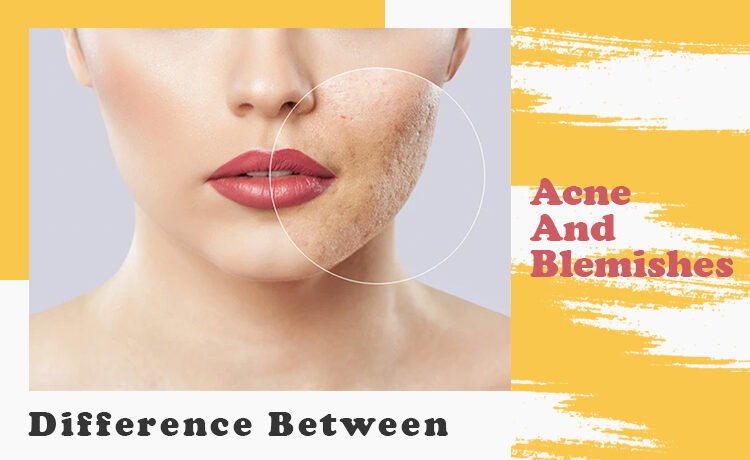 Difference Between Acne And Blemishes Blog Featured Image