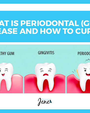 What Is Periodontal Disease And How To Cure It Blog Featured Image