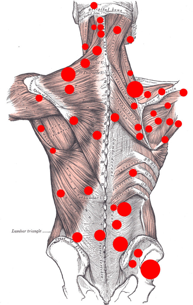 Image of massage therapy pain points