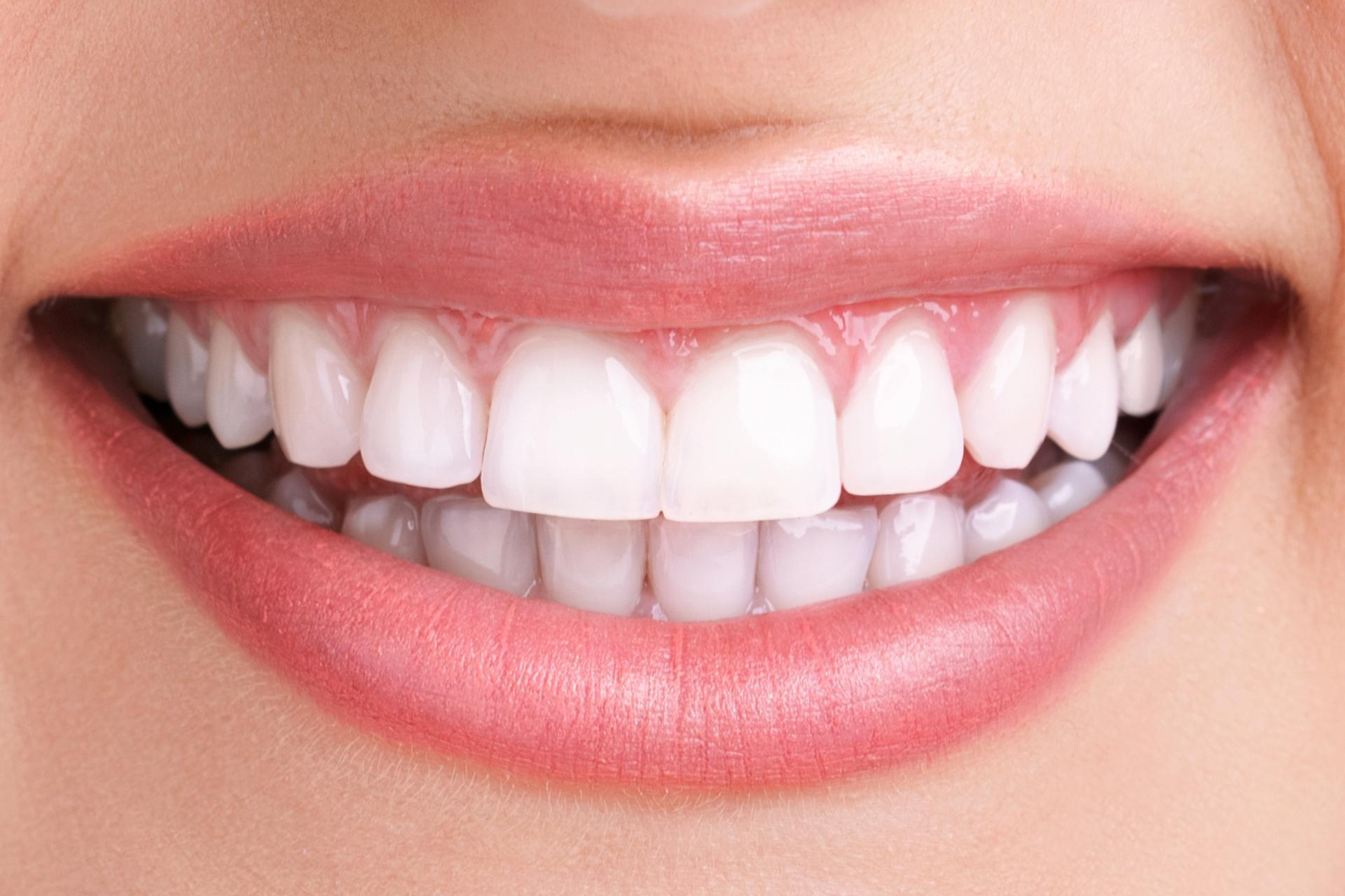 Tender Dental Care