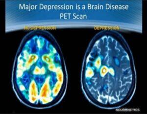 TMS Depressed Brain Scan