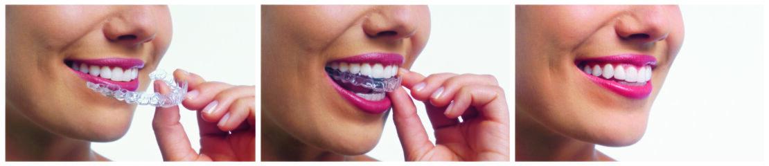 lady wearing invisalign invisalign houston houston dental oasis