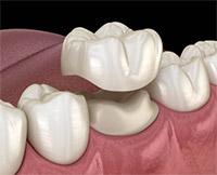 Houston Dental Oasis Dental Crown Promotion