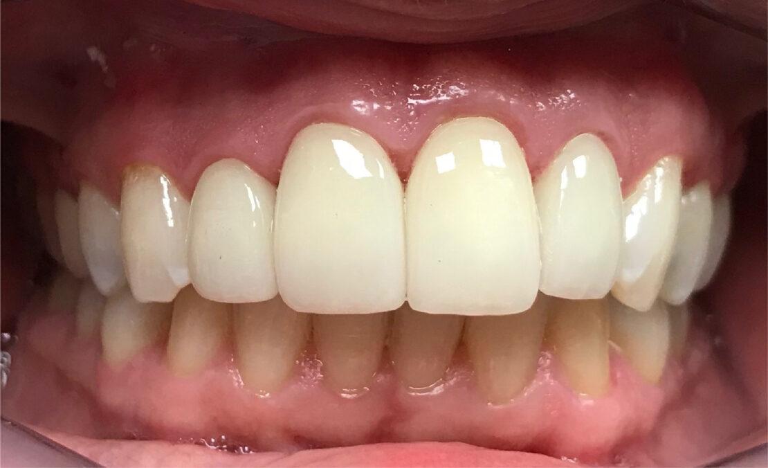 Teeth before dental crowns in Houston at Houston Dental Oasis