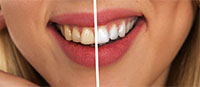 Houston Dental Oasis Teeth Whitening Promotion