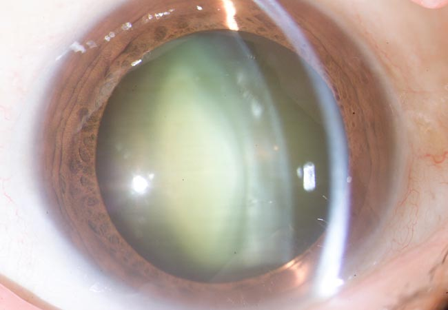 Foto 1: Cataratas y ojo seco