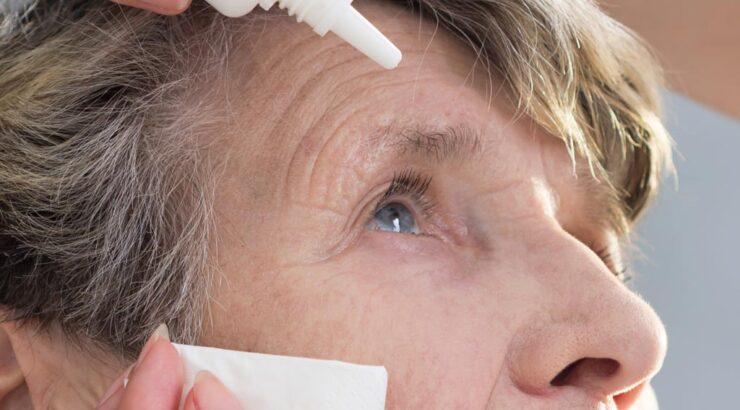 Síndrome de ojo seco: causas y tratamiento