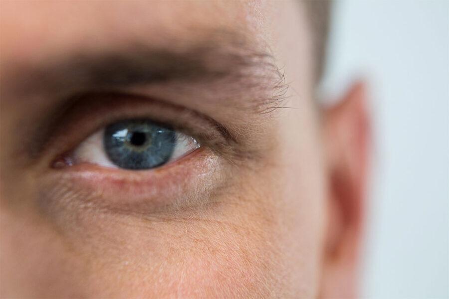 Enfermedades de los párpados - Ilab Cuida tus ojos