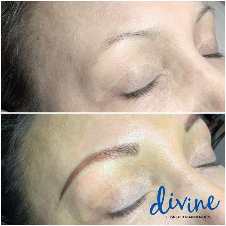 Microshading- Before and After- Divine Cosmetic Enhancements