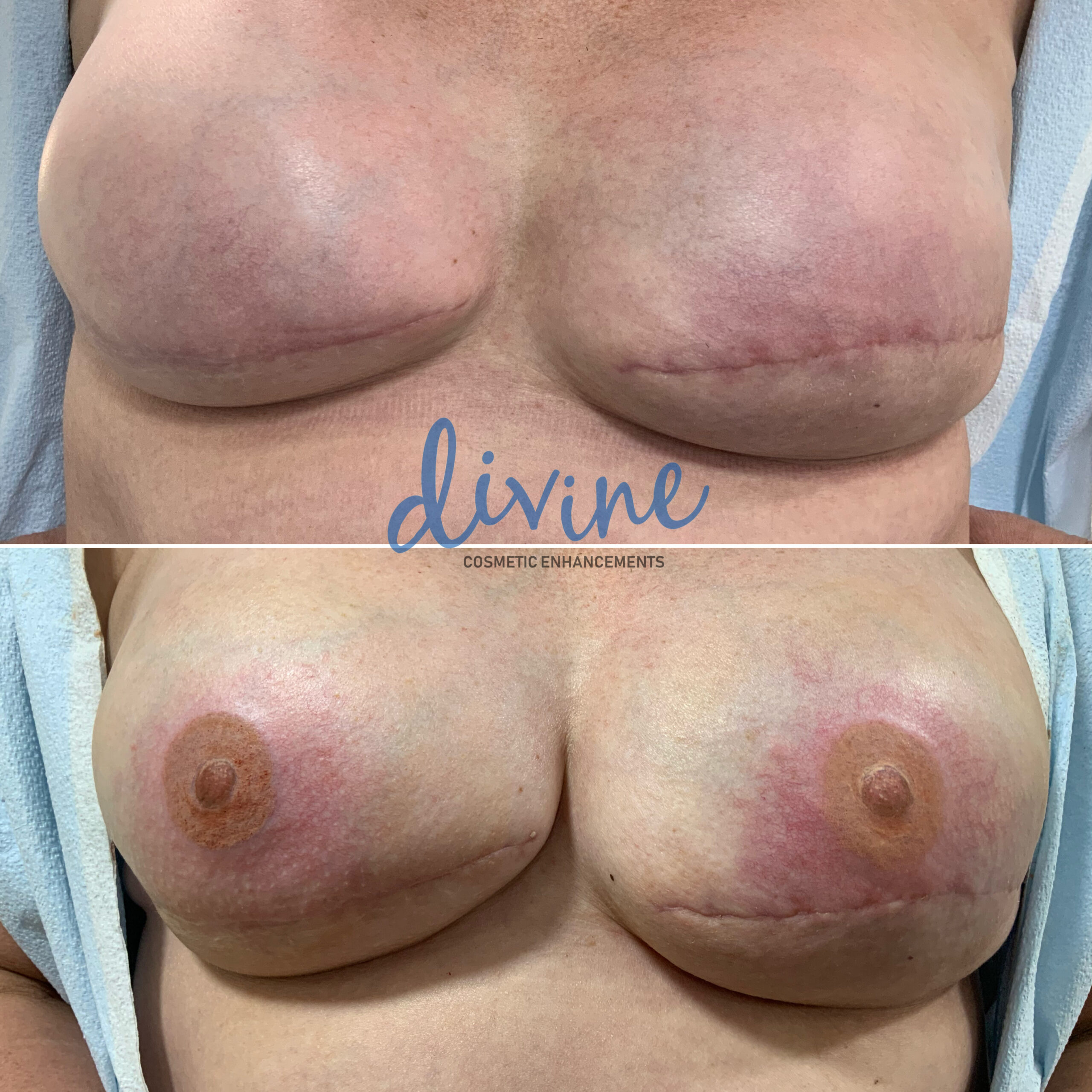 3D Areola Nipple Before and After