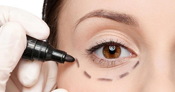 ตาโปน ปัญหานี้แก้ได้ด้วยการ ศัลยกรรม การทำศัลยกรรม, ความสวยความงาม, สุขภาพดี