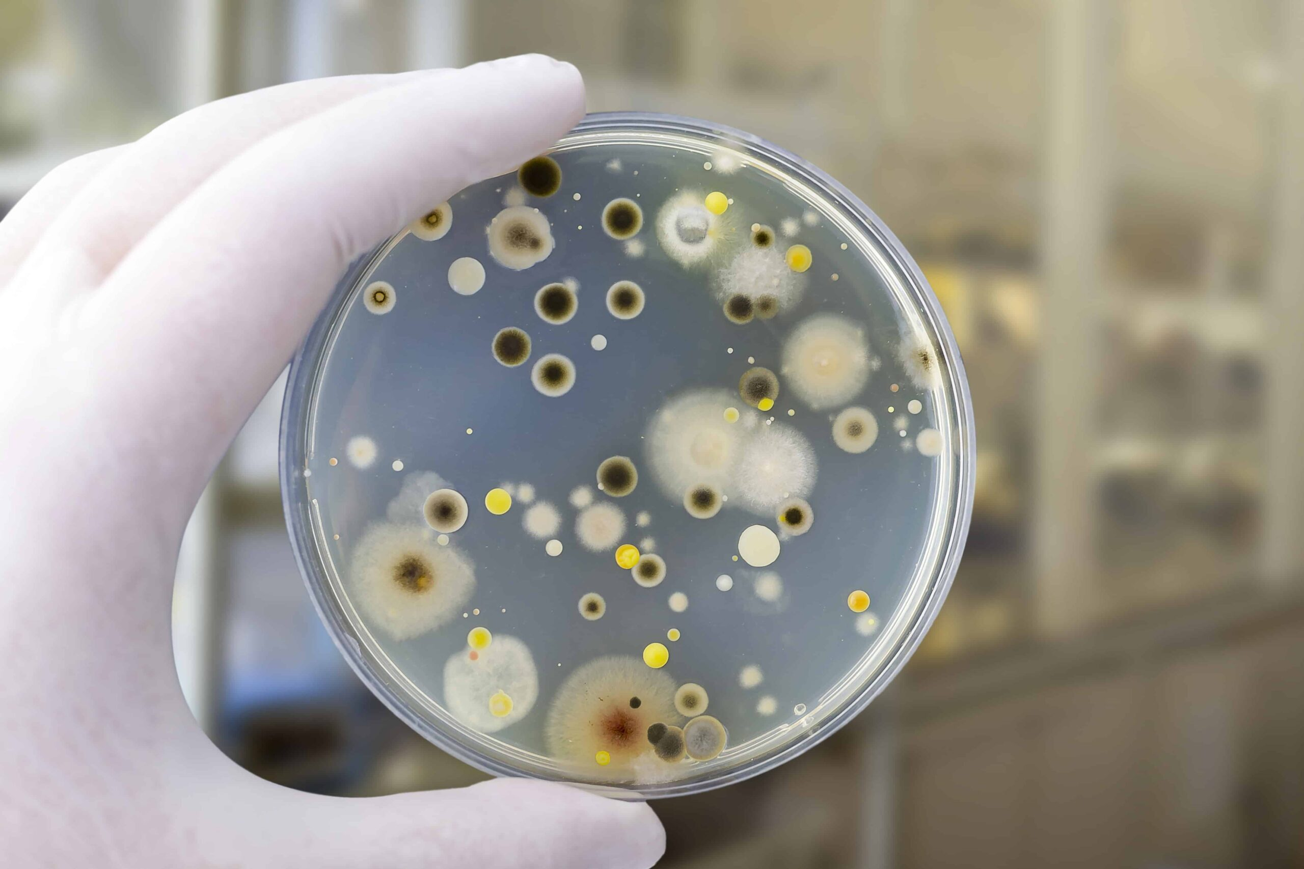 Canva-Colonies-of-different-bacteria-and-mold-fungi-grown-on-Petri-dish-with-nutrient-agar