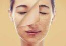 BÍ QUYẾT: Làn da trẻ hóa 13 năm chỉ trong 9 tháng