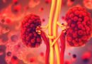 Bệnh COVID-19 có thể gây tổn thương thận