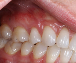 Correction of receding gum level (soft tissue Graft)After