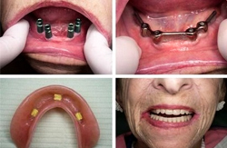 An Overdenture case supported by four Dental Implants before and after