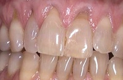 Correction of generalized receding gum level (soft tissue Graft) before