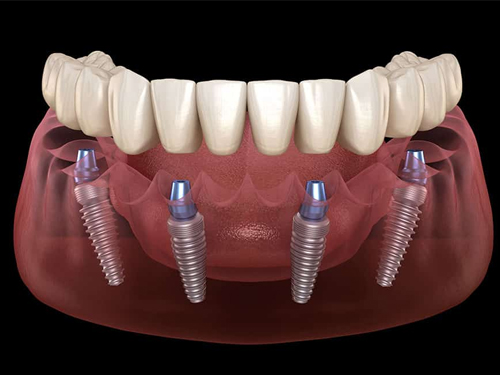 Dental Implants Moreno Valley