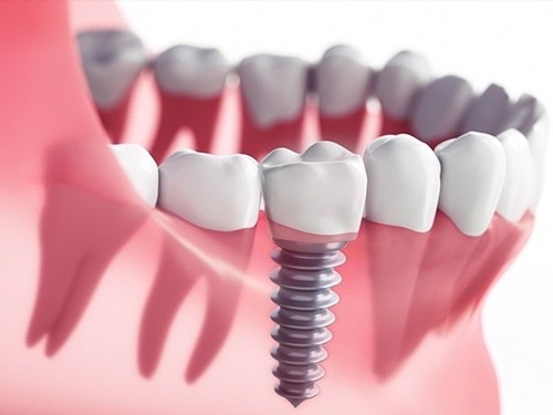 Dental Implants Riverside County