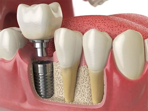 Dental Implants Riverside