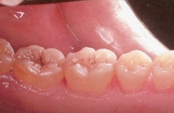 Gum health after non surgical treatment After