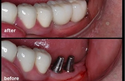Multiple Dental Implant case before and after