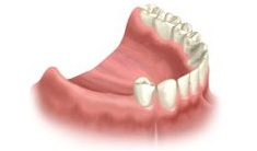 Multiple Dental Implants Course of Treatme Riverside