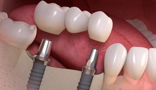 Multiple Missing Teeth Dental Implants Riverside