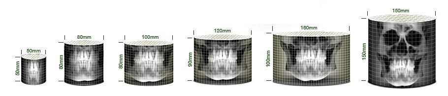 PaX-i3D Green Imaging