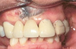Removal of uncosmetic dark pigmented oral tissues before