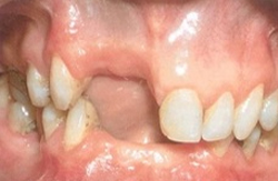 Ridge Build-up with soft and hard tissues followed by new crowns 1