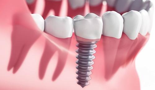 Single Tooth Dental Impants Riverside