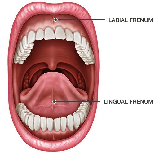 Frenectomy